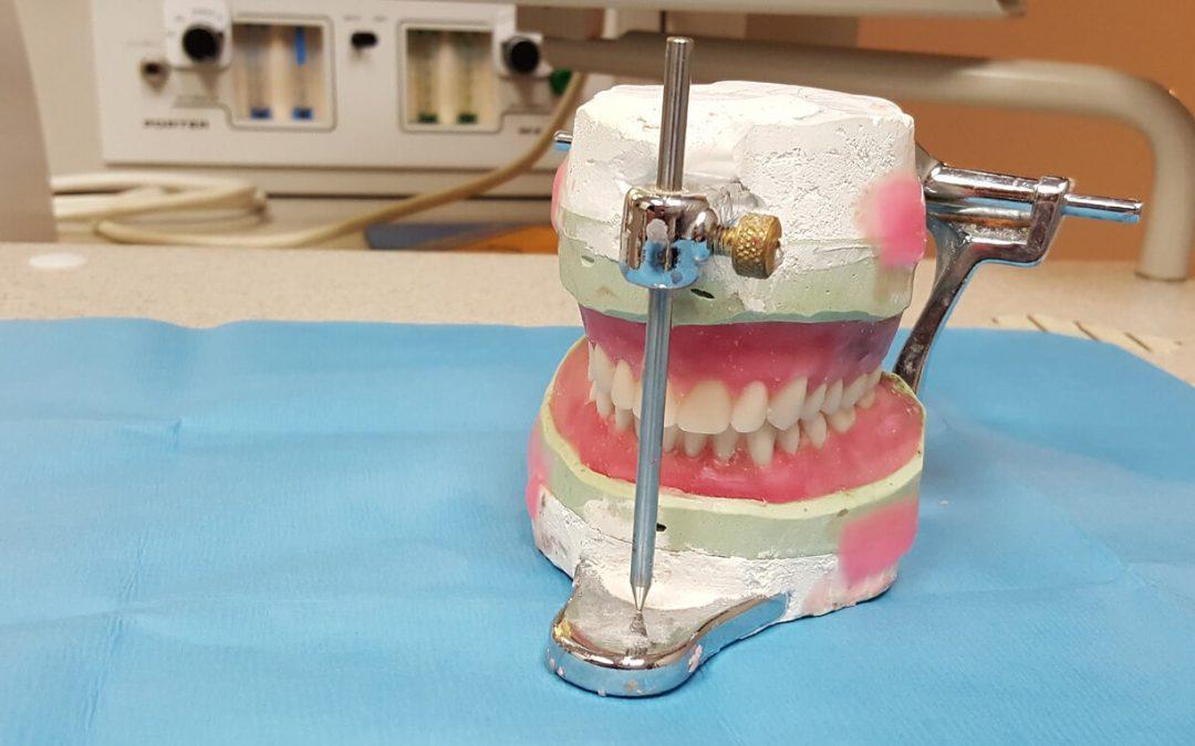 Fehlende Zähne ersetzen
