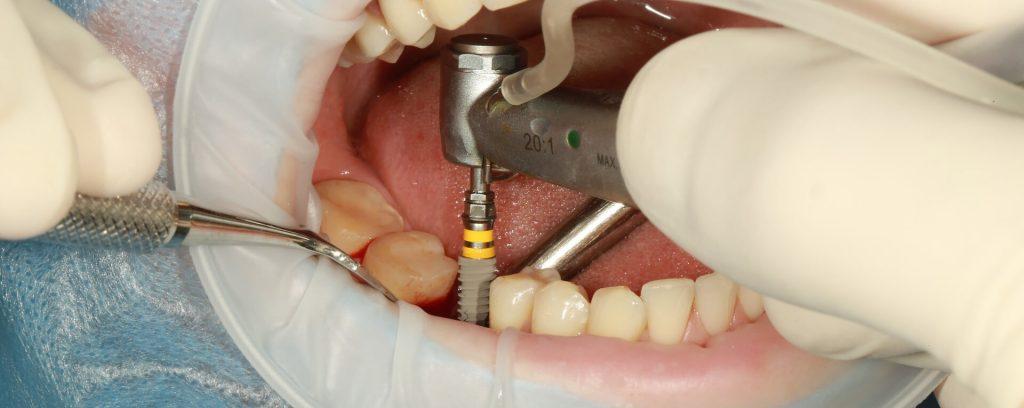 Zahnimplantate Ungarn Hero